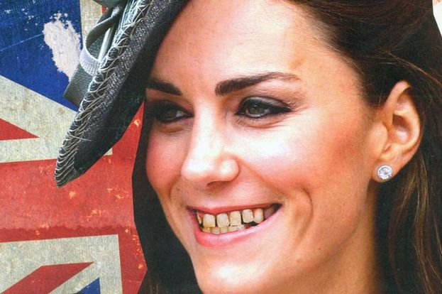 Kate z zepsutymi zębami... (FOTO)