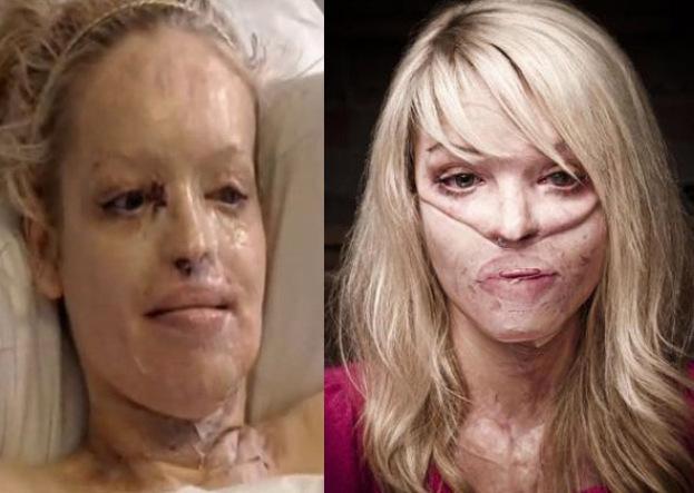 """Katie Piper: """"Odzyskałam twarz!"""""""