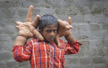 Hindus z dłońmi większymi od głowy. Straszna choroba (GALERIA)